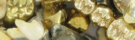Zahngold verkaufen - Infos zur Ankaufsabwicklung